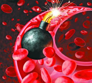 Blood circulation danger with an active inited bomb in an artery with blood cells as a concept for a human heart attack and urgent health problems caused by bad cholesterol levels and an unhealthy eatng lifestyle.